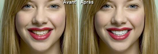 Avant Après Dents Blanches Tutoriel Photoshop