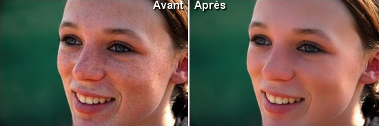 Avant Apres Taches de rousseur Tutoriel Photoshop